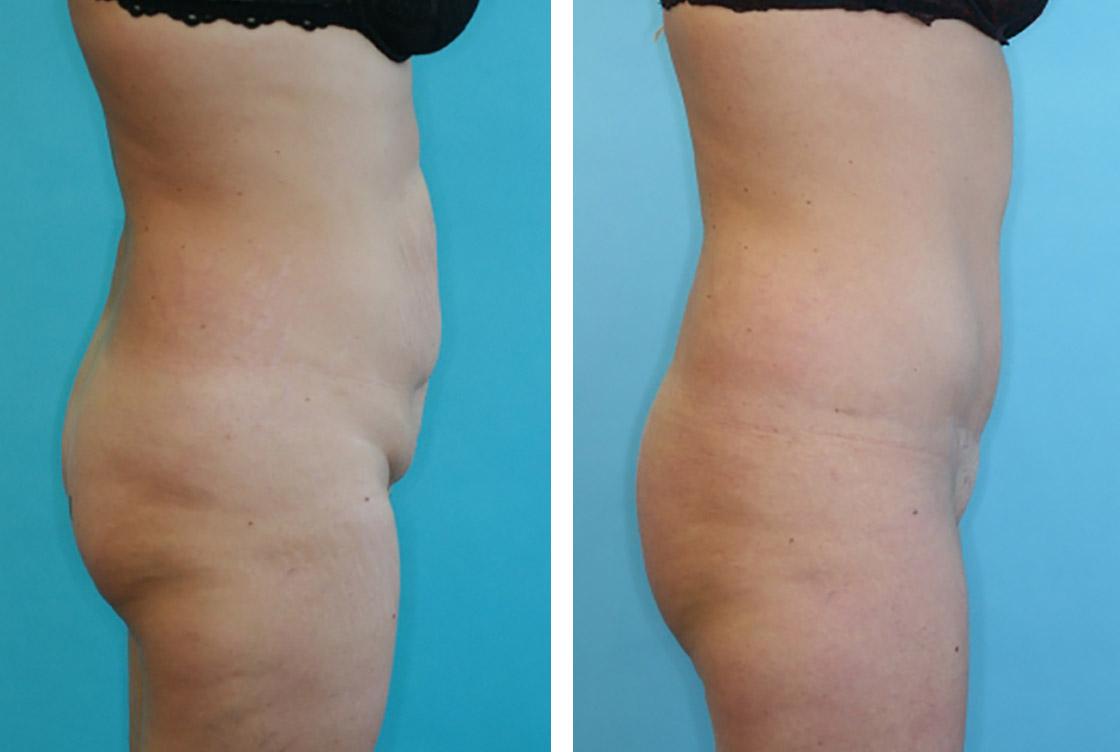 Bauch, Tummy-lifting Vorher-Nachher Vorschaubild