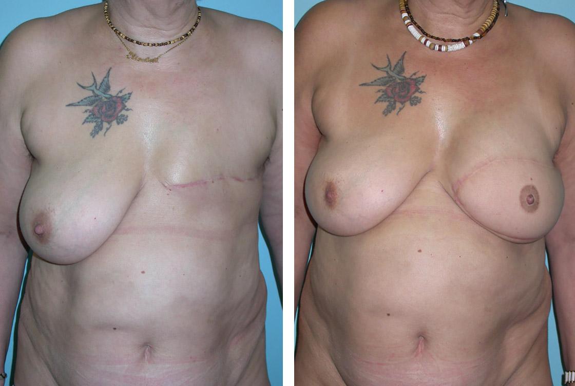 Brust Rekonstruktion - Vorher-Nachher Vorschaubild