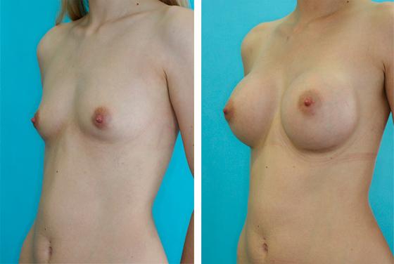 Brustvergroesserung - Vorher-Nachher Vorschaubild
