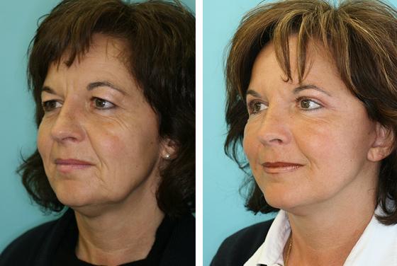 Facelift Vorher-Nachher Vorschaubild