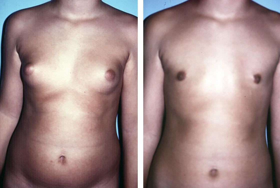 Verkleinerung der maennlichen Brust - Vorher-Nachher Vorschaubild