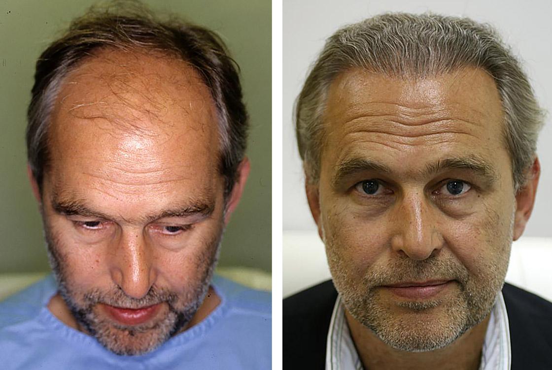 Haartransplantation - Vorher-Nachher Vorschaubild