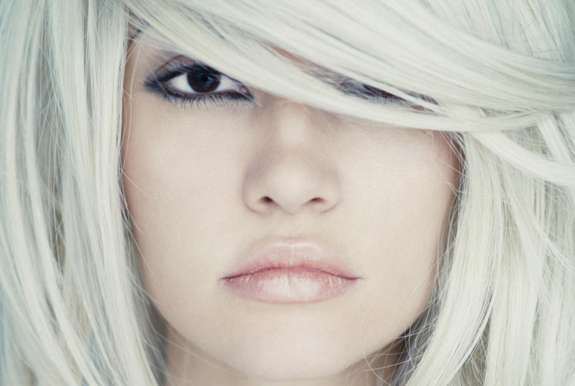 Lippenvergrösserung Vorher-Nachher Vorschaubild